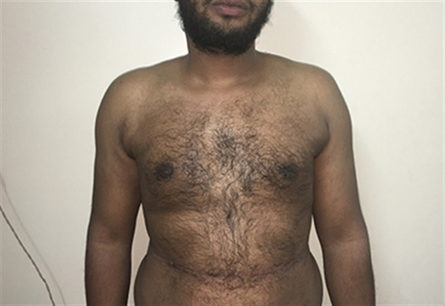 Treating Gynecomastia